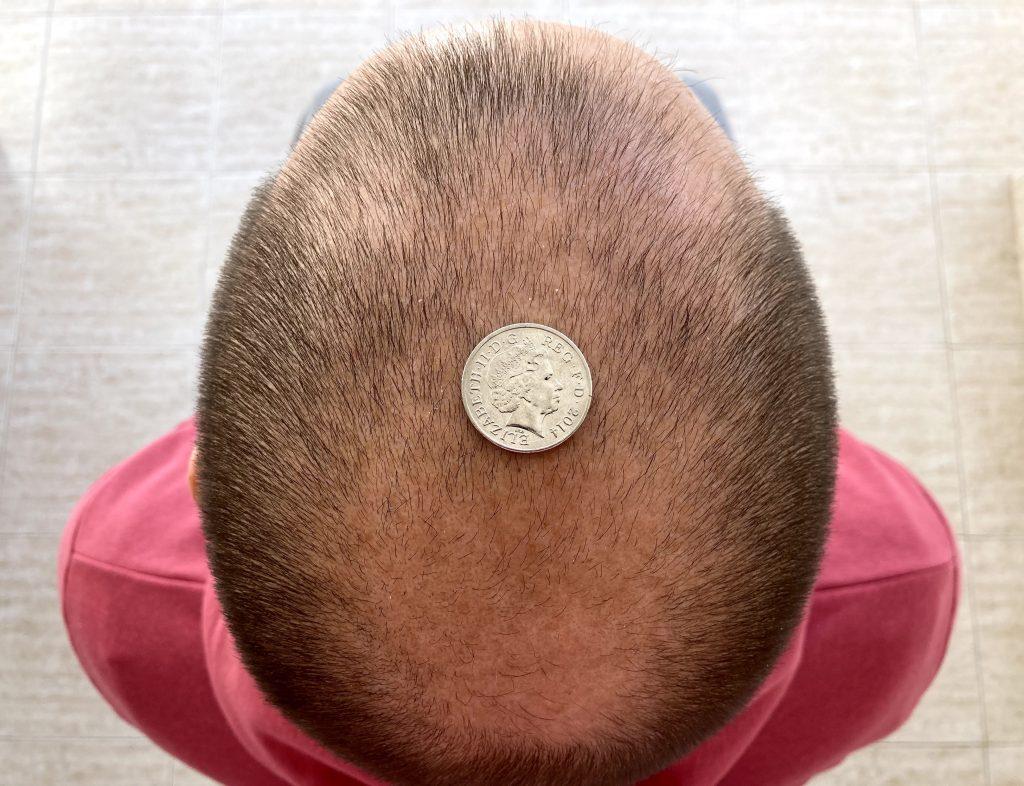 Hair loss graft calculator